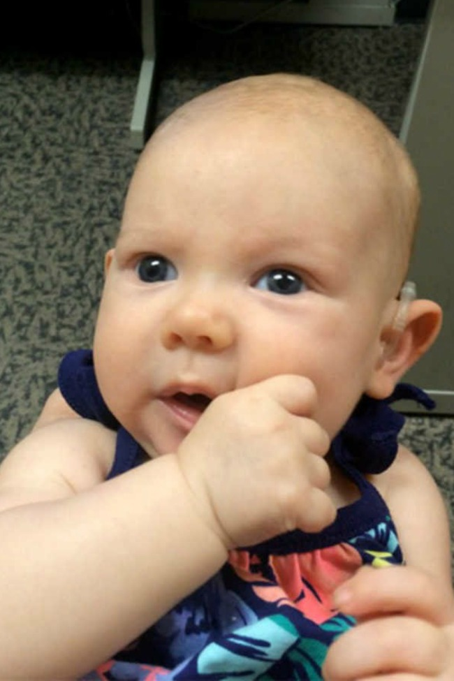 Deaf Baby Hears Moms Voice For The First Time