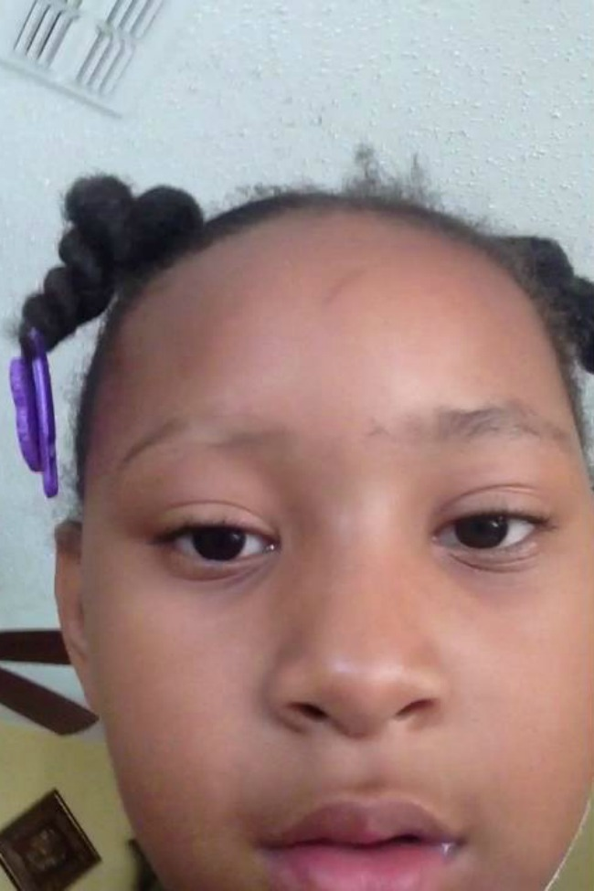 Six-Year-Old Shaves Off Eyebrow, Immediately Regrets It