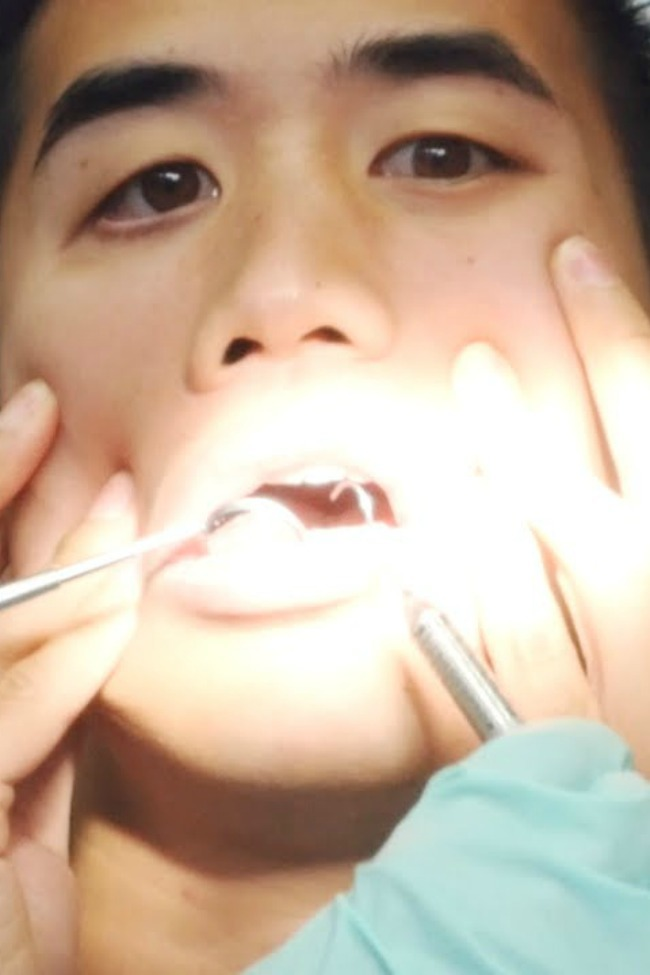 """Man Uses Dental Instruments To Play Cover Of """"I Can't Feel My Face"""""""
