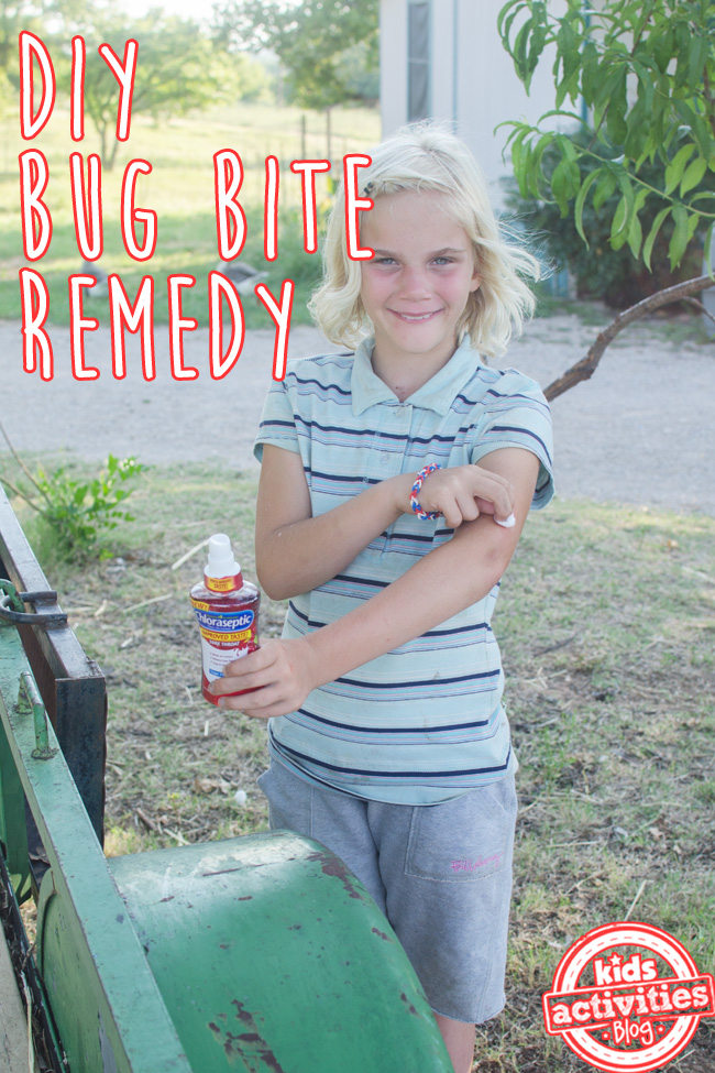 Relieve Mosquito Bite Sting with a Home Remedy